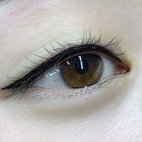 customer-pic-eye-1