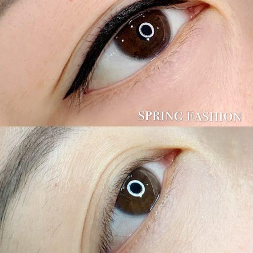 customer-pic-eye-5