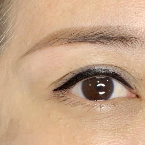 customer-pic-eye-6