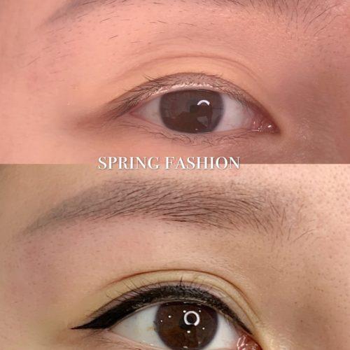 customer-pic-eye-7