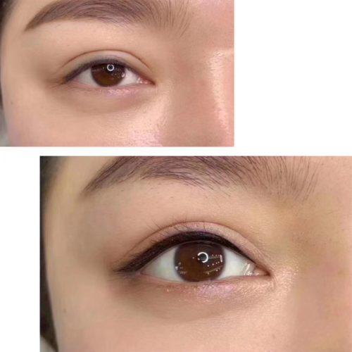 customer-pic-eye-9