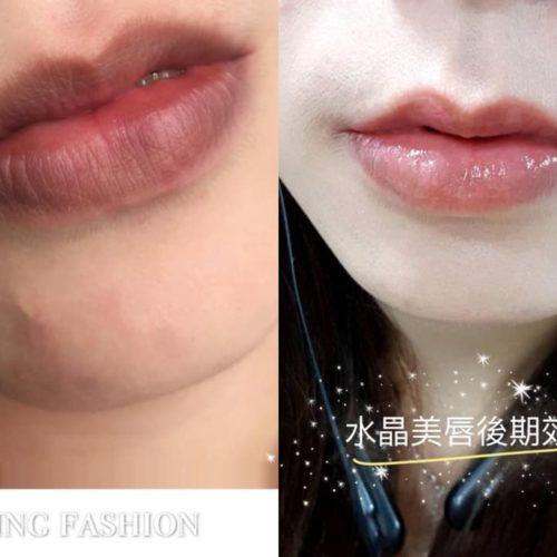 customer-pic-lip-10