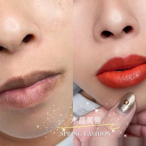 customer-pic-lip-16