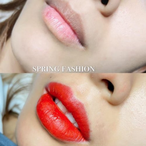 customer-pic-lip-6